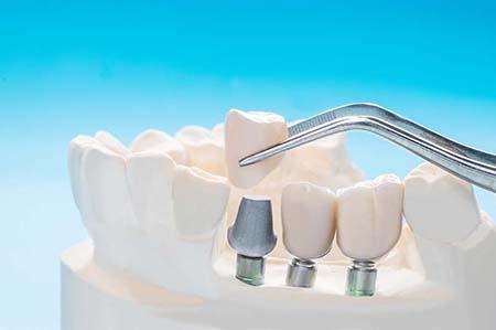 dental-crown-2