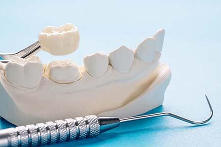 dental-crown-3
