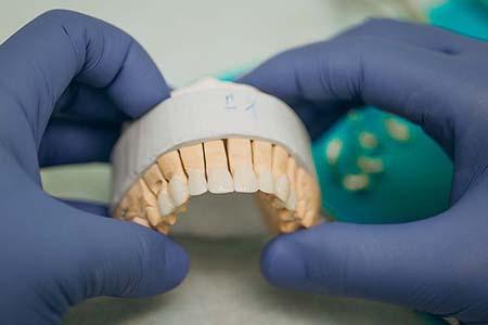 dental-crown-4
