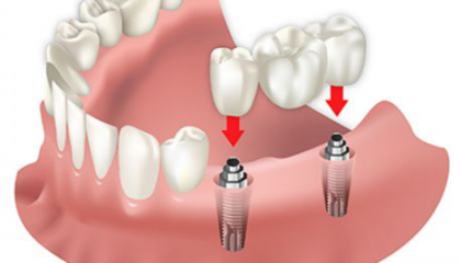 Removable Prosthesis on Implant